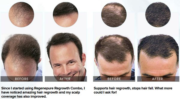 regenepure hair loss shampoo